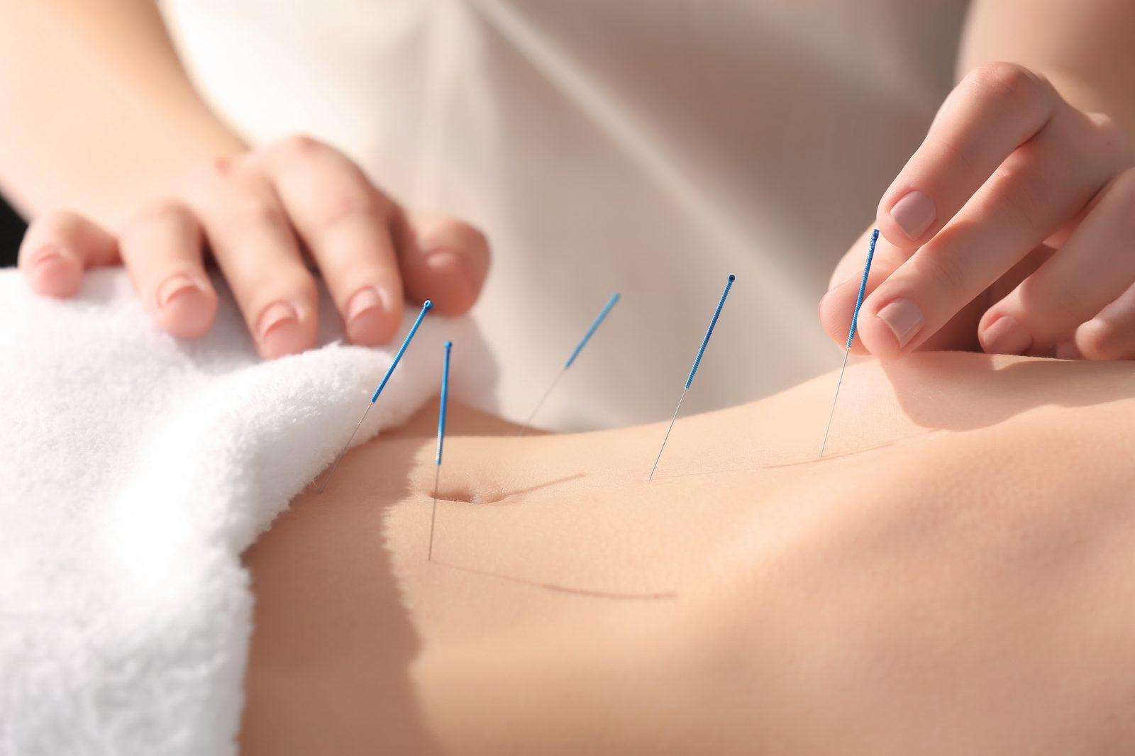 Descubre todos y cada uno de los beneficios de la acupuntura